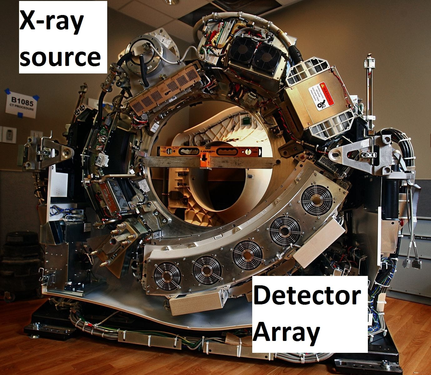 Internal components of a modern CT scanner. Note the x-ray source is placed opposite of the detector array on the gantry.