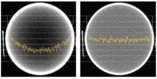 Left: Image with cupping artifact. Right: Image without cupping.