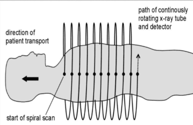 helical-scan.png