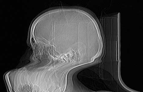 Motion Artifact in CT