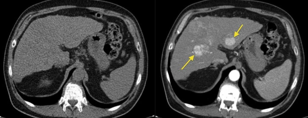Abdominal CT with iodine contrast (right) is able to detect lesion that is undetectable without contrast (left).