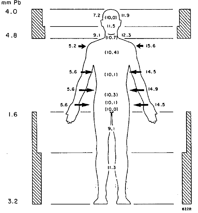 Illustration of compenator use in lateral field total body irratiation. Source: AAPM TG-29.