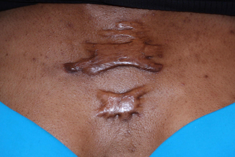 Skin Keloid is a scar like overgrowth of skin tissue.