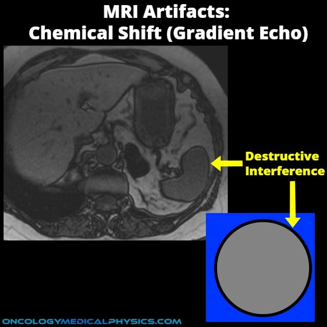 Chemical shift in gradient echo imaging results in constructive and destructive interference. This results in an MRI artifact.
