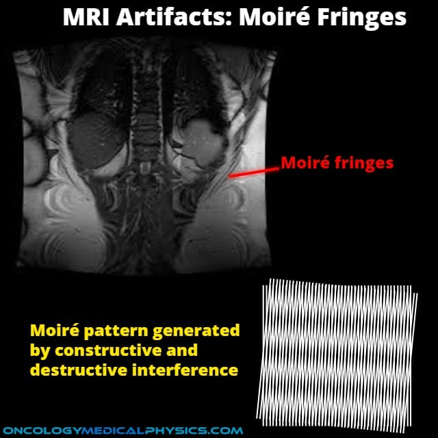 Moire fringes MRI artifact results from superimposed signals.