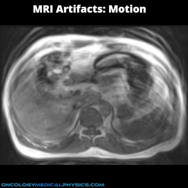 MRI motion artifact