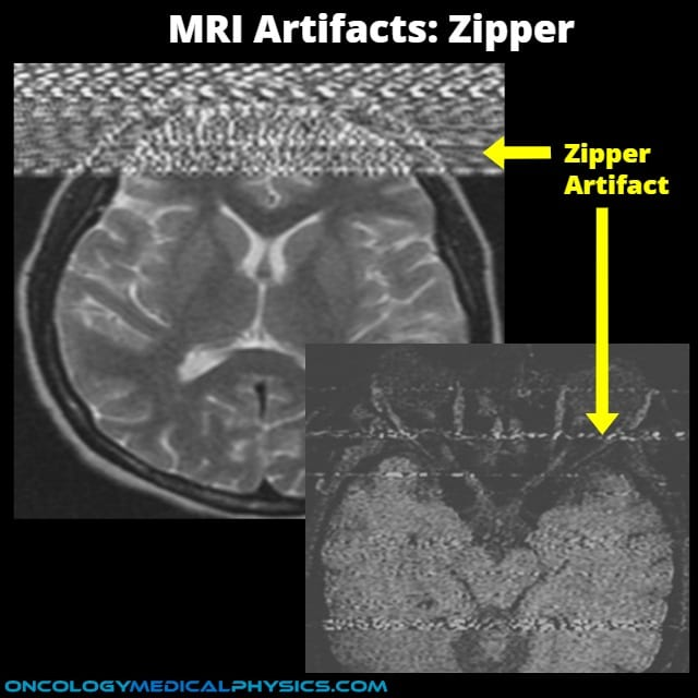 Zipper artifact is occurs in MRI suites with insufficient RF shielding.