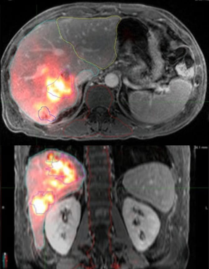 Hepatic PET/MRI showing microsphere location within liver.
