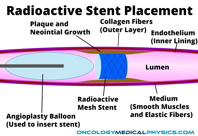 Illustration of radioactive sent with arterial anatomy during balloon angioplasty procedure.