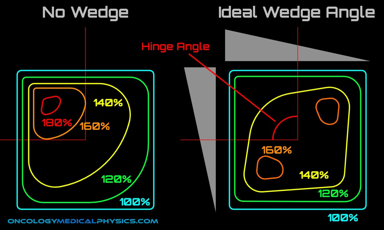 Ideal hinge angle and wedge angle for photon dose distribution.