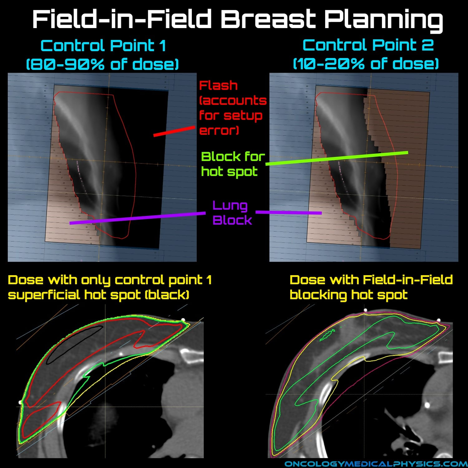 Field-in-field planning technique used to create uniform dose in breast radiation therapy.