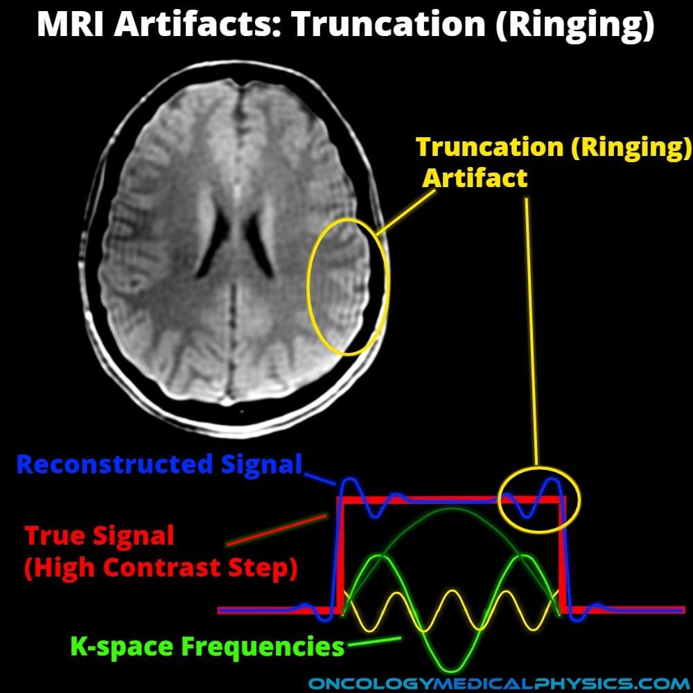 Truncation, also known as ringing, MRI artifact.