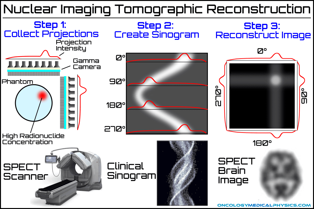 Tomographic reconstruction process used in PET and SPECT nuclear imaging.