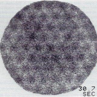 Gamma camera flood field with pincushion artifact (image should be uniform).