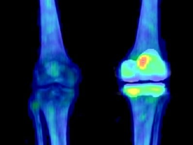 Tc-99m bone scan shows evidence of knee joint remodeling after reconstruction.