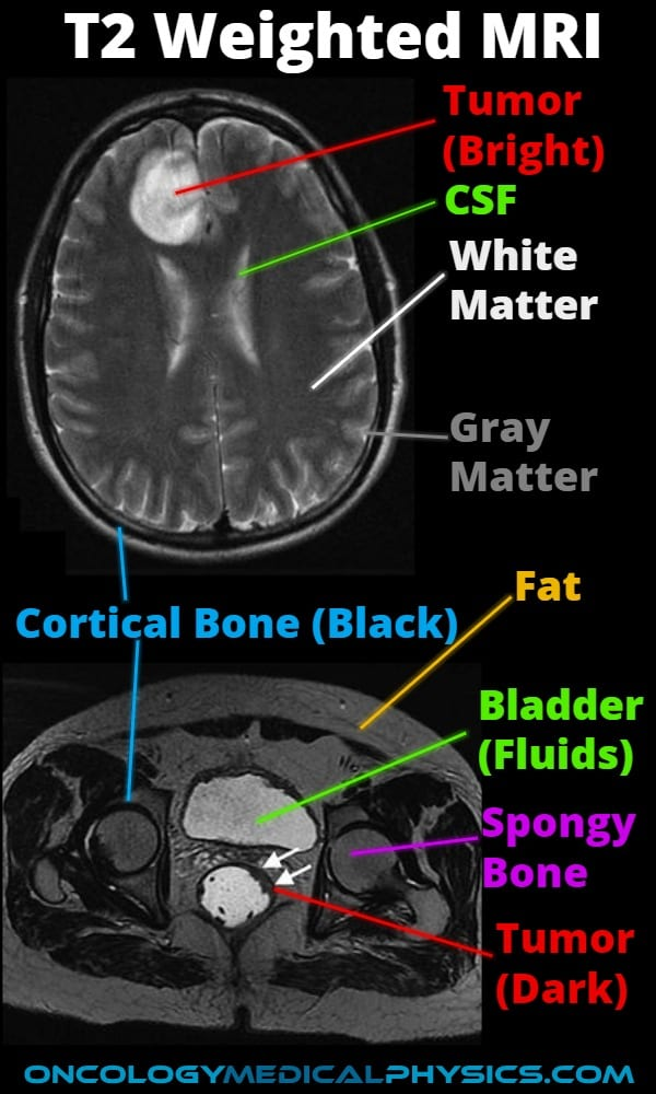 Illustration of tissue contrast in T2 weighted MRI imaging
