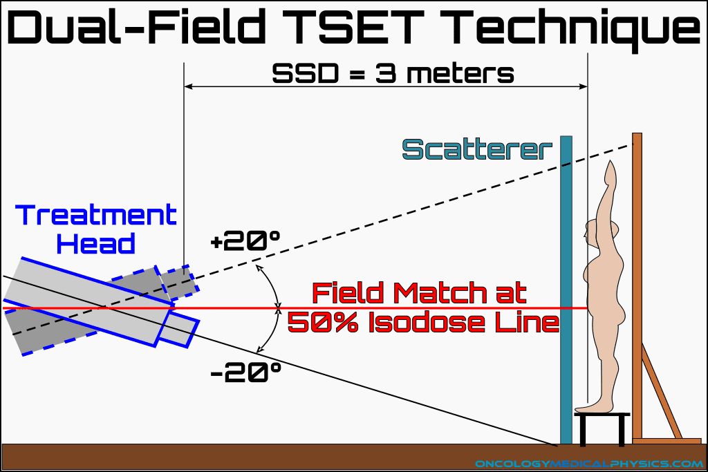 Illustration of the dual-field TSET treatment technique.