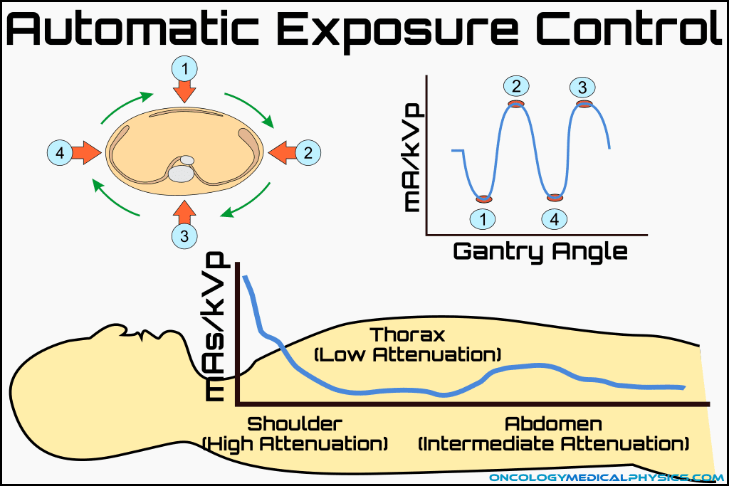 Illustration of automatic exposure control using mA and kVp modulation used to reduce patient dose while maintaining consistent SNR.