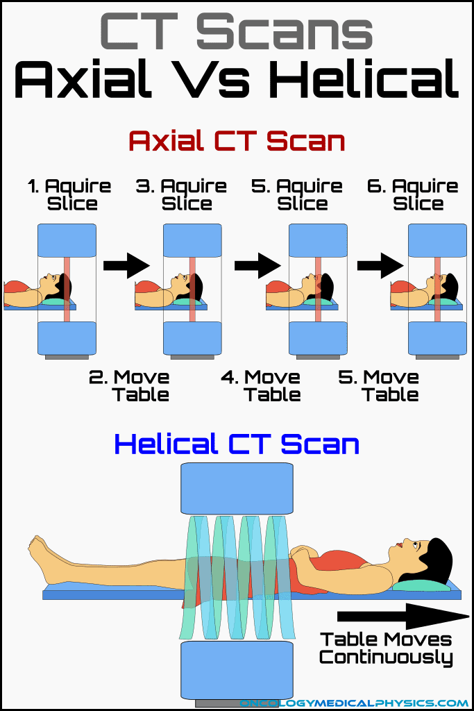 Comparison of axial vs helical CT scans